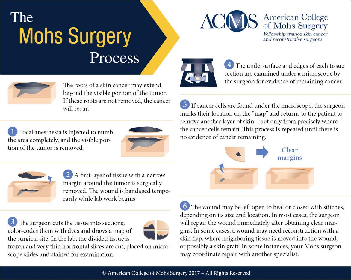 Mohs Process